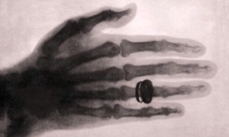 quién descubrió la radiografía