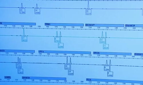 procedimiento extracción ADN